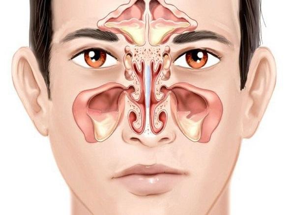 Bệnh viêm xoang và cách hỗ trợ điều trị